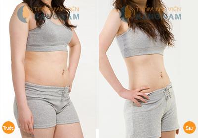 Cách giảm mỡ bụng dưới hiệu quả nhanh chóng bạn nên biết 5