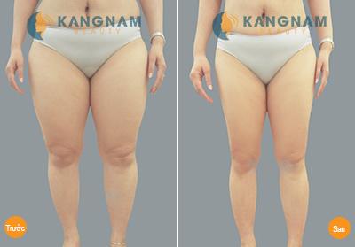 4 cách làm giảm cân đơn giản ai cũng có thể làm được 9