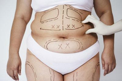 Bất ngờ với cách giảm mỡ bụng nhanh chóng nhất hiện nay