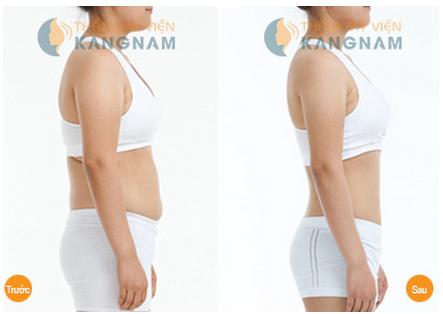 Cách giảm mỡ bụng nhanh chóng và hiệu quả chỉ 1 lần duy nhất 3