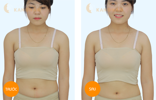 Phải làm sao để giảm mỡ bụng nhanh chóng nhất? 6