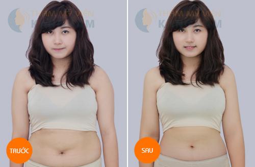 Phải làm sao để giảm mỡ bụng nhanh chóng nhất? 5