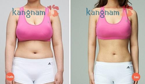 Lắc vòng giảm mỡ bụng đúng cách Kangnam