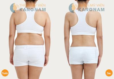 Laser Lipo - Cuộc cách tân trong việc giảm mỡ toàn thân 2