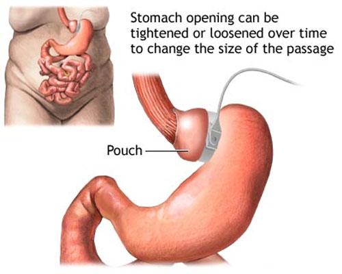 Phẫu thuật thắt dạ dày giảm béo: Có ngày tiền mất tật mang! 2