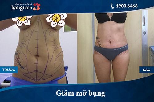 Kết quả khách hàng sau giảm béo bằng Lipo Matic 3D