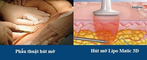 Lipo Matic 3D có thể giúp loại bỏ đến 95% lượng mỡ thừa tích tụ trong cơ thể