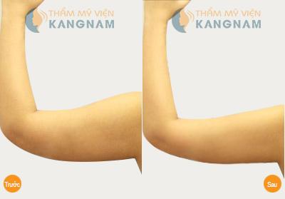 Hút mỡ bắp tay 1 lần duy nhất hiệu quả đến 95% 4