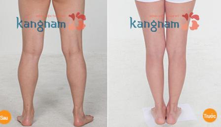 Kết quả giảm mỡ chân bằng công nghệ Laser Lipo