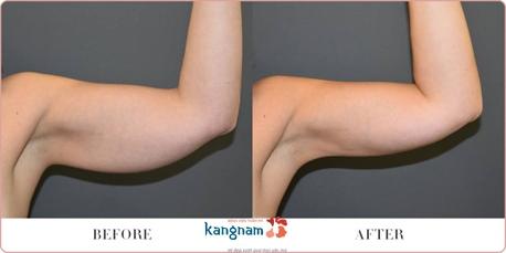 Kết quả khách hàng hút mỡ bắp tay Kangnam
