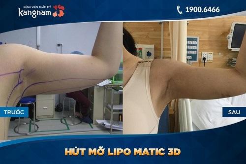 giảm mỡ Lipo Matic 3D tại TMV Kangnam