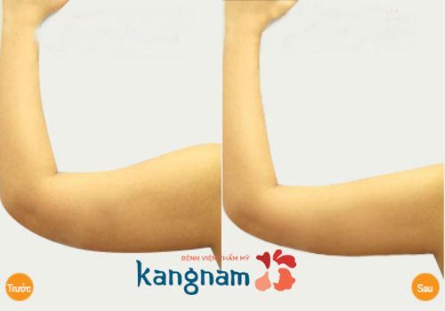 cách giảm mỡ ở bắp tay