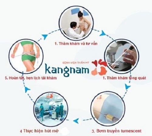 Quy trình hút mỡ đùi chuẩn theo Bộ Y Tế tại Kangnam